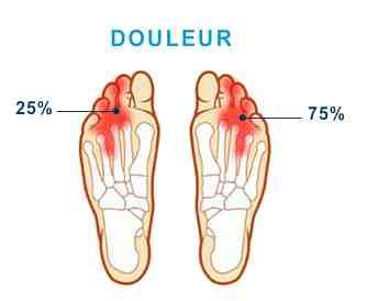 Valerie d reflexologie plantaire le n vrome de morton for Douleur interieur du pied