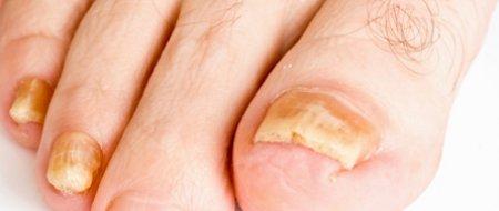 L'onychomycose des pieds