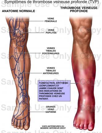 Thrombose veineuse profonde (TVP)